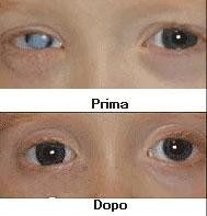 Leucoma Centrale con lente a contatto