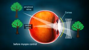 occhio-miope-con-lente-convenzionale